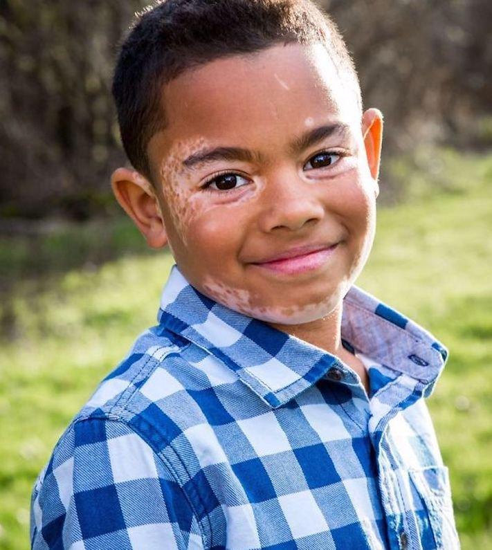 nemoc_vitiligo_depigmentace_u_psa_psu_deti_dite_lecba1