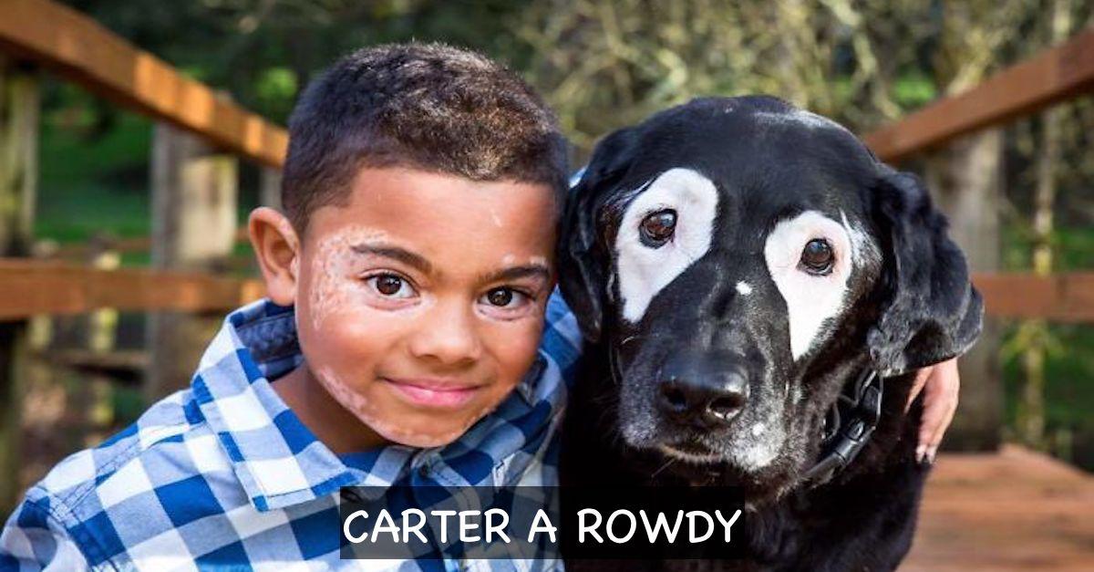 Chlapec se vzácnou nemocí kůže nesnášel sám sebe, ale pak našel své psí dvojče